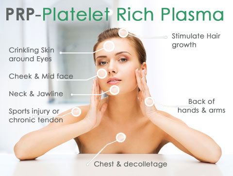 Platelet Rich Plasma Therapy Tampa Florida